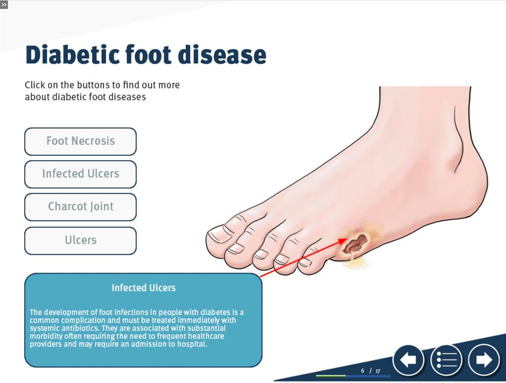 Diabetic Foot E-Learning